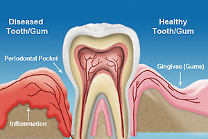 Dr. Kim will conduct a perio exam looking for other signs of gum disease
