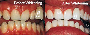 Before and After Whitening Treatment