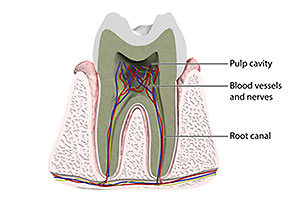 A root canal is a pulp-filled canal in the root of a tooth
